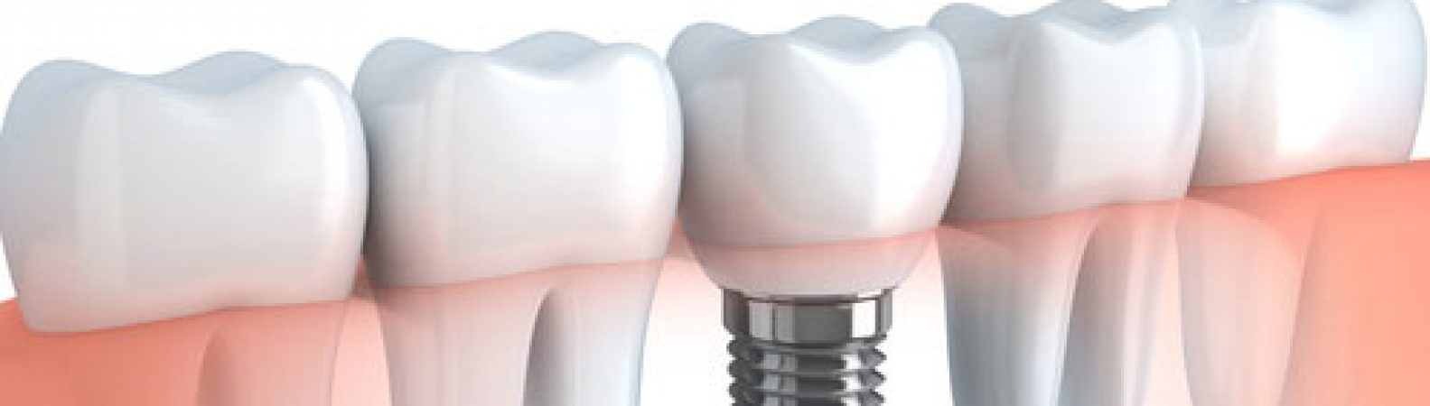 More Good News About Dental Implants [BLOG]