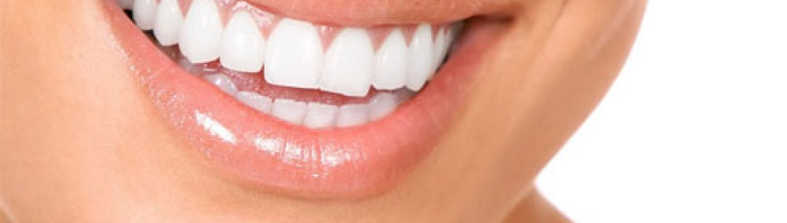 Can Dental Bonding Rebuild Your Teeth?